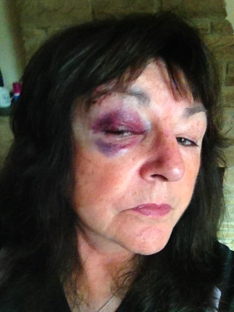 Pam's Black Eye from the 2015 GNR